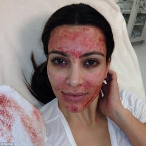 Image Kim Kardashian Vampire Facial