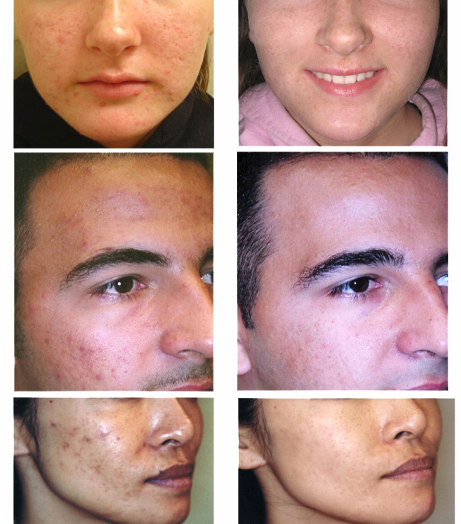 Images of before and after clearogen acne treatment