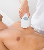 Men having Laser Hair Removal on Chest