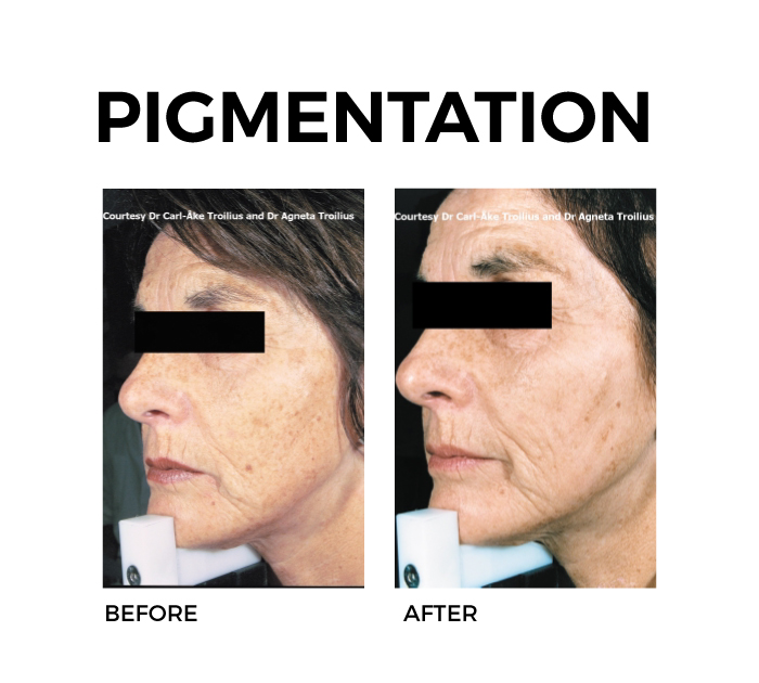 Ellipse Skin Rejuvenation for Pigmentation