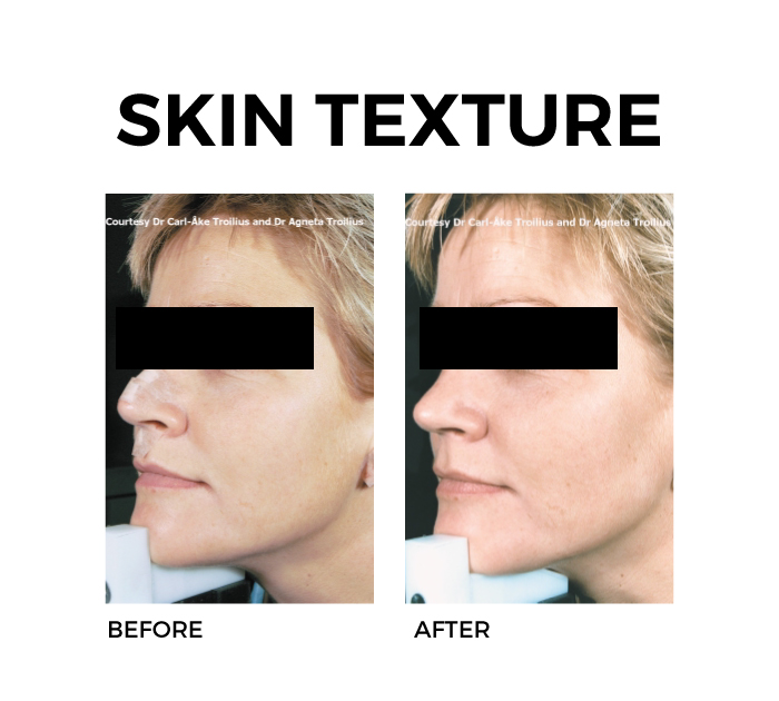 Ellipse Skin Rejuvenation for Skin Texture